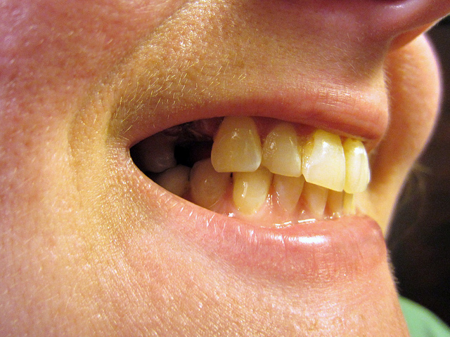 dental bridges fill in the gaps - close up of profile of teeth and mouth