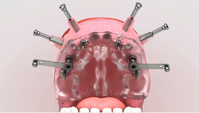 the effectiveness of dental implants in Prescott - dental implants in a mouth