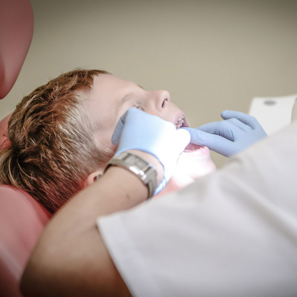 dentist opening a child's mouth