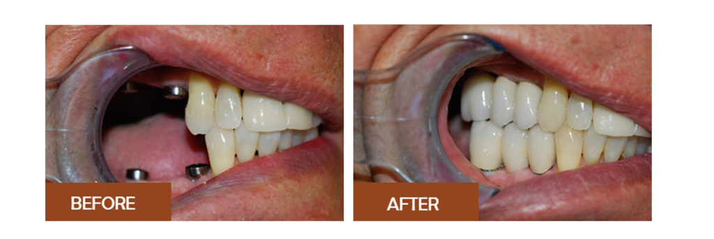 Before and After images of teeth