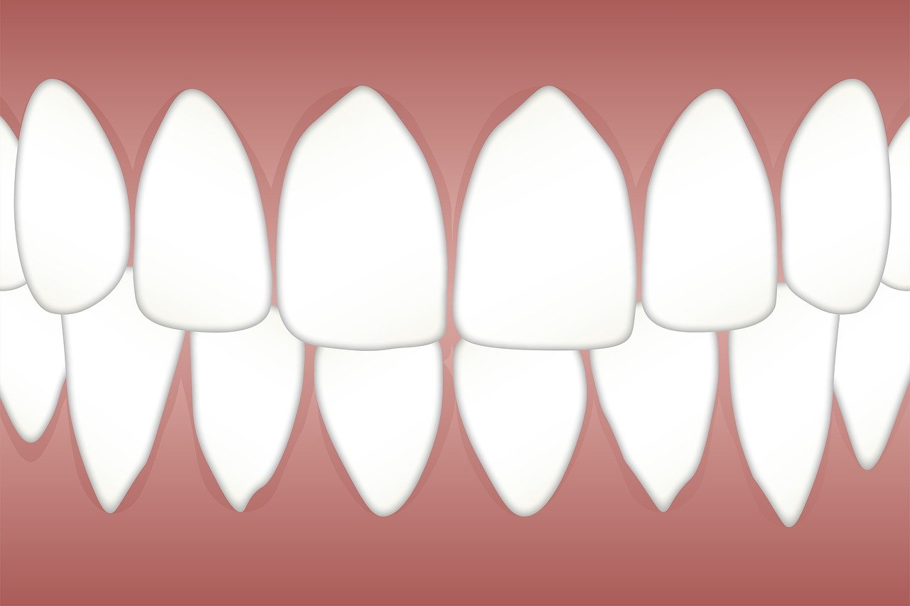 periodontal scaling and root planing